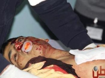 The body of 16-year old Samir Ahmed Awad