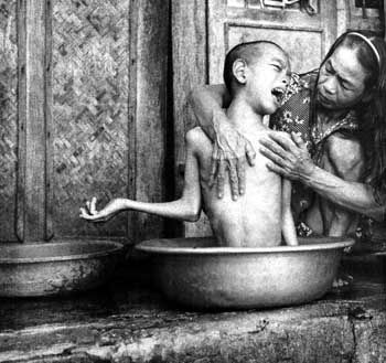 Thi Hoi bathes her 14-year-old son, Bui Quang Ky. She was exposed to Agent Orange when she was in the North Vietnamese Army during the war